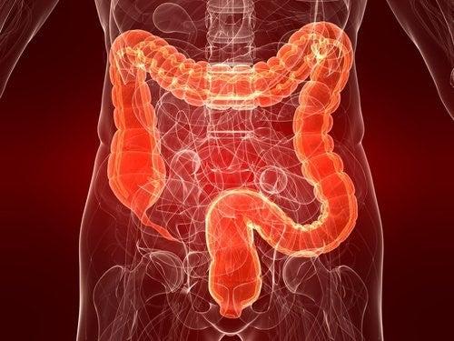 Colitis ulcerosa: Årsager, symptomer og behandling