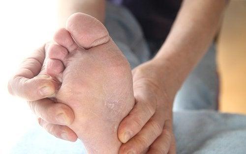 Fodsvamp: Forebyggelse og behandling