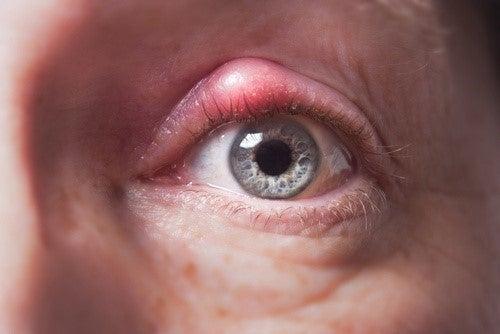 bygkorn symptomer