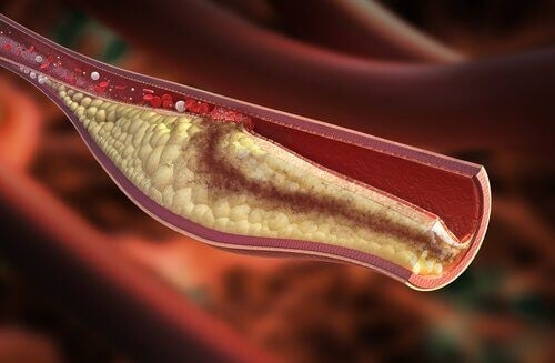 Hvad er symptomerne på højt kolesteroltal?