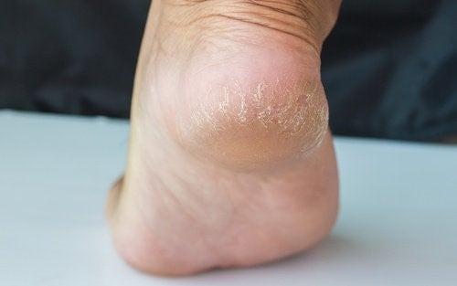 Sådan lindrer du sprukne hæle på et par dage