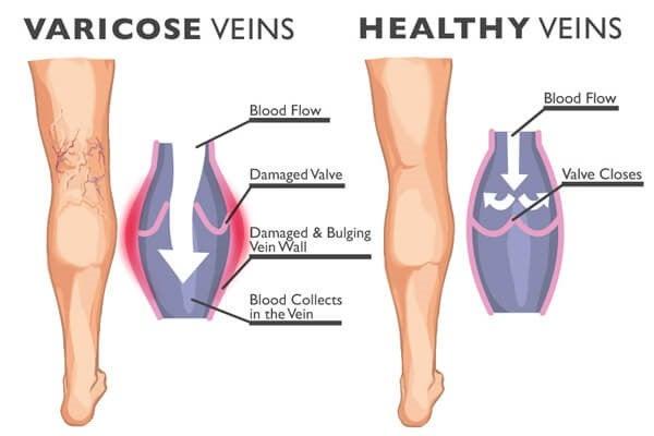 Åreknuder og karsprængninger er hævede blodkar, bl.a. i benene