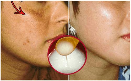 Du kan gøre din hud lysere med hjemmelavet creme