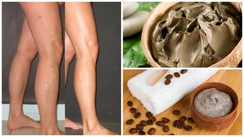5 naturlige måder at bekæmpe åreknuder