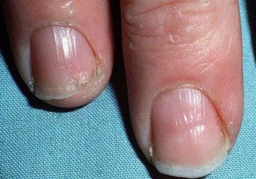 oedelagte-negle