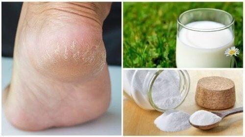 Skrub fødderne med kokosolie og salt