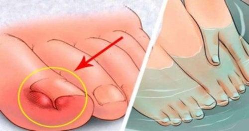 6 hjemmelavede midler til at lindre nedgroede tånegle