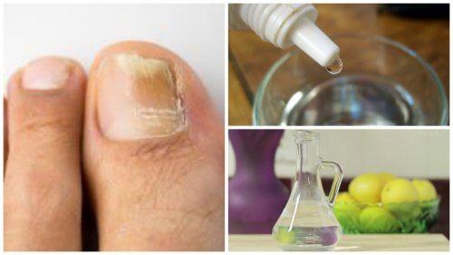 behandling af neglesvamp