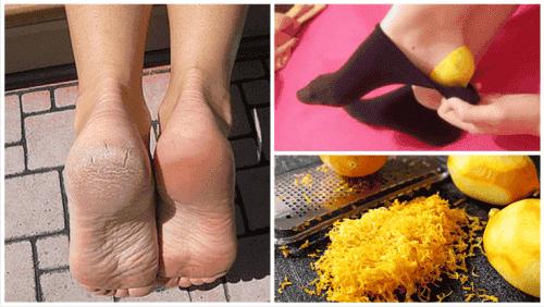 Brug citronskaller til at kurere dine fødder