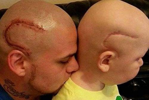 """""""Nu er vi ens."""" Far får tatoveret sønnens ar fra kræftoperation"""