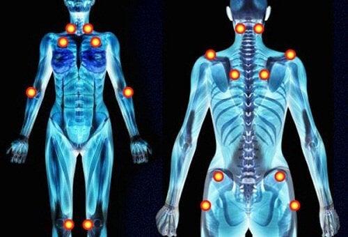 5 tidlige advarselstegn på fibromyalgi