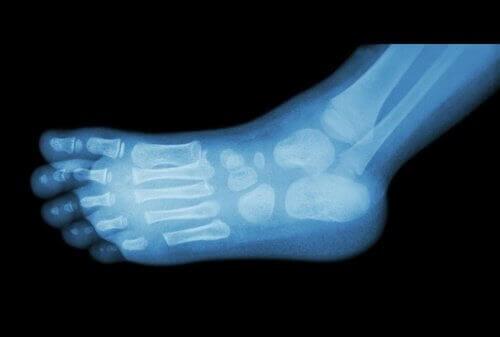 Knogler i fod