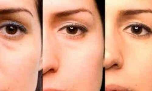 Råd til at fjerne poser under øjnene