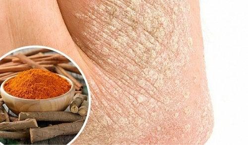 7 naturlige måder at bekæmpe hudsygdommen psoriasis