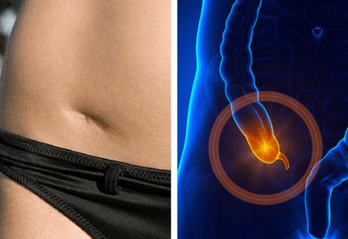 diarre efter blindtarmsoperation