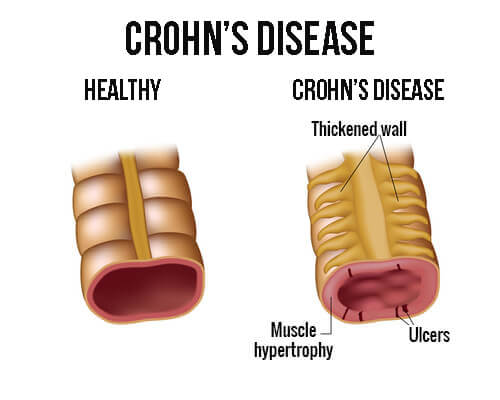 Behandling af Crohns sygdom med den rigtige kost