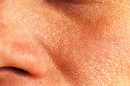 Naturlige midler mod forstørrede porer