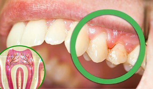 6 mulige årsager til tandpine