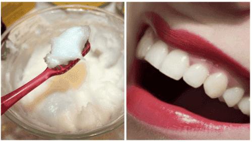 Sig farvel til mundproblemer med dette naturlige middel