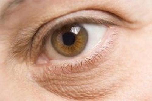 udslæt under øjet