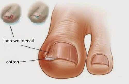 6 gamle midler mod nedgroede tånegle