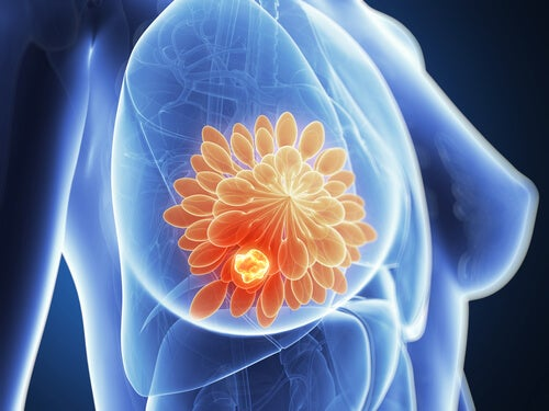 Kvinde med brystkraeft