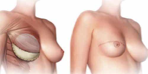 Det bør du vide før en mastektomi