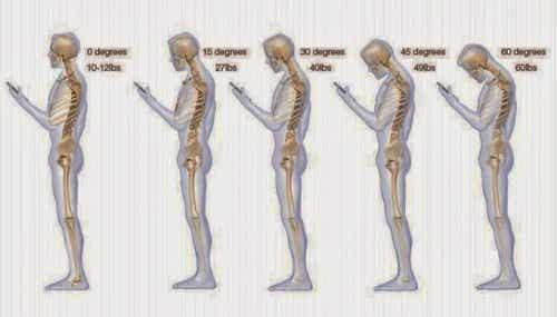 9 vaner der kan forårsage smerter i nakken