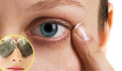 behandling af mørke rander under øjnene