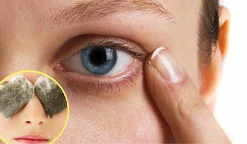 5 midler mod mørke rander under øjnene