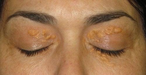Xantelasma: De hvide pletter omkring øjnene