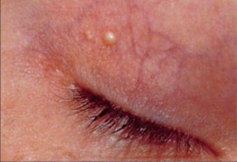 talgknopper under øjnene