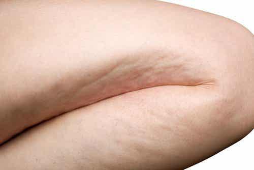6 øvelser til effektivt at bekæmpe appelsinhud