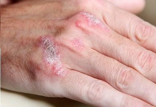5 ting du bør vide om autoimmune sygdomme