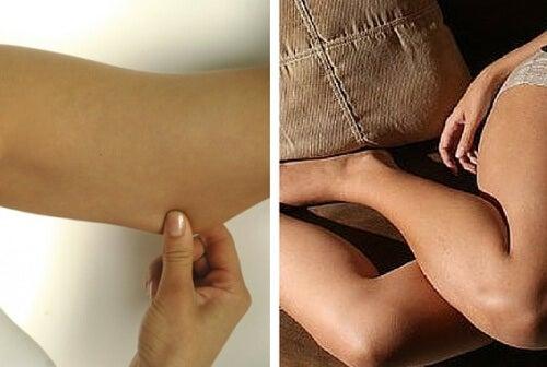 Ton dine arme og ben, så de bliver faste og flotte
