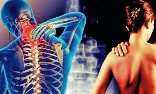 Cervikobrakialt syndrom: Smerte fra nakken ned i armene