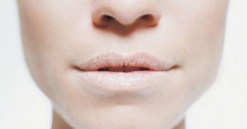 Dehydrering giver ofte tørhed i munden og på læberne
