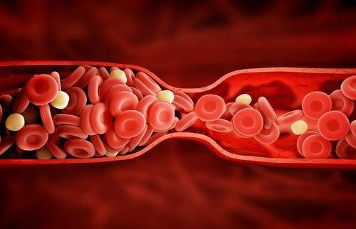 En utrolig ny behandling mod dårlig kolesterol