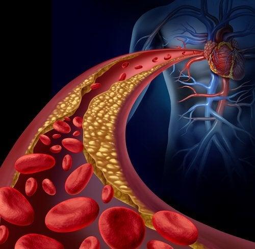 Kolesterol i en blodaare