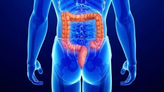 Analkræft sidder i enden af tyktarmen og viser sig bl.a. som vorter i det anale område