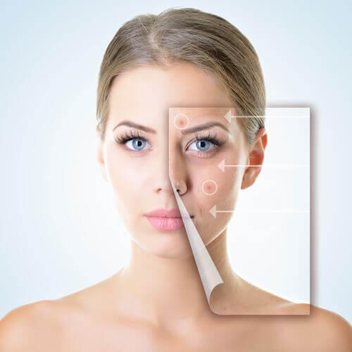 Kvinde der har problemer med huden