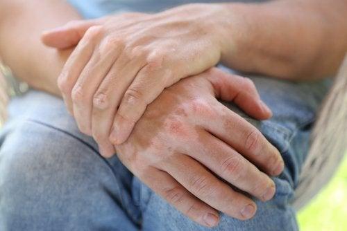 Hjemmemidler til at behandle vitiligo