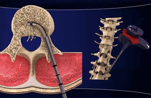 Ny behandling mod kroniske smerter i lænden