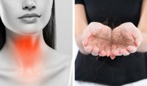8 der kan bekæmpe skjoldbruskkirtelrelateret hårtab