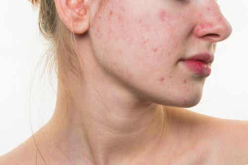 5 spisevaner som kan ødelægge ens ansigt