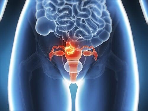 6 symptomer på livmoderhalskræft, som man bør kende