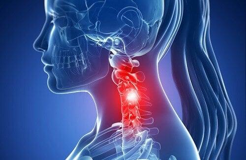 Symptomer på cervikal spondylose og naturlig behandling