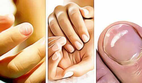 5 ting dine fingernegle siger om dit helbred