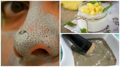 5 utrolige masker til hudorme fri hud
