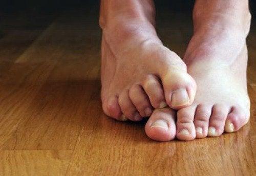 7 ting du bør vide om tåneglesvamp